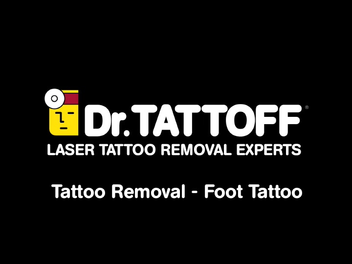 Tattoo Removal – Foot Tattoo